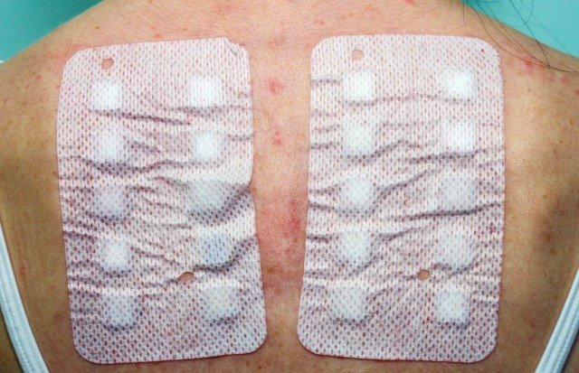 Dermal Patch Allergy Test for Contact Dermatitis at Allergy Training Session