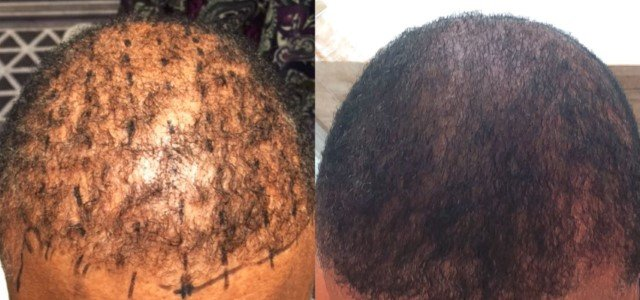 Before | After Photo after PRP-A Hair Loss Treatment after (4) Months
