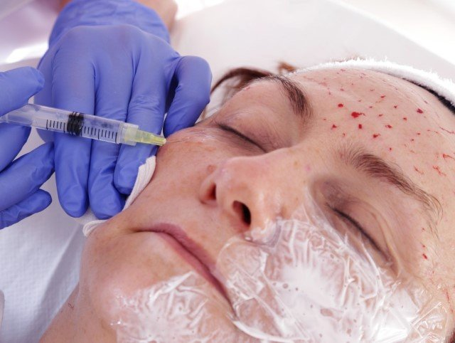 Mesotherapy injections for the Meso-Lift Procedure