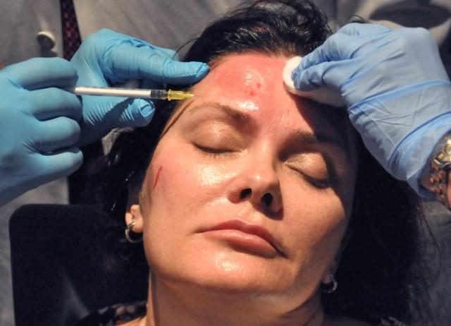 Hands-On Training for PRP Facial Rejuvenation