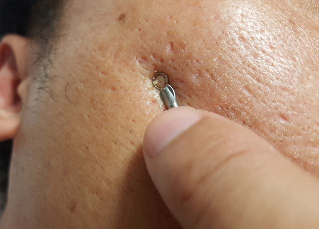 Hands-On Curettage Treatment for Acne Lesion Scars