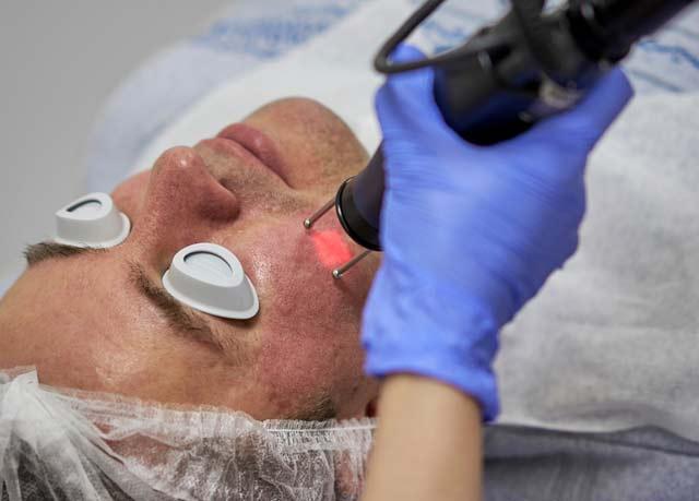 Acne Scar Patient utilizing Fractional CO2 Laser Treatments