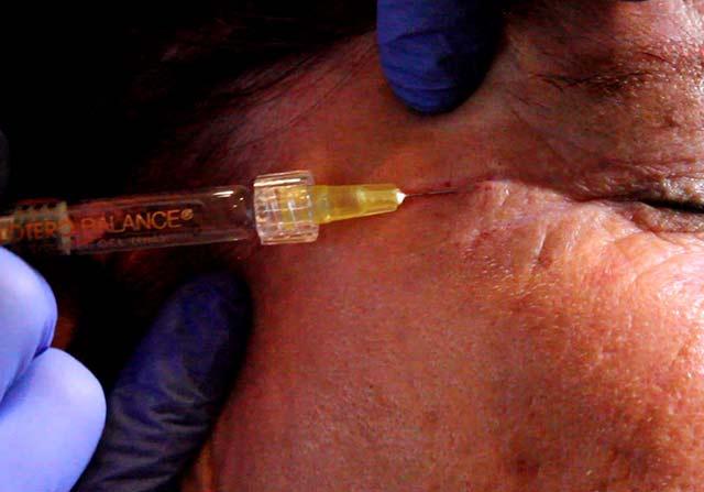Workshop Photo of Static Rhytid Injection using Dermal Fillers periorbital area