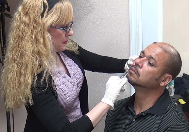 Workshop Photo: Physician injecting HA Dermal Filler for Naso-labial folds