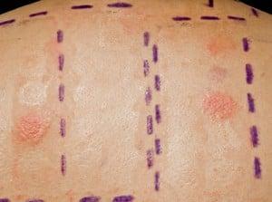 Allergy Intradermal Skin Test