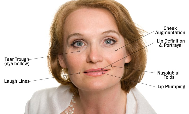 Facial Areas & Indications for Dermal Fillers