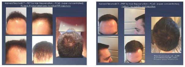 prp for alopecia for men